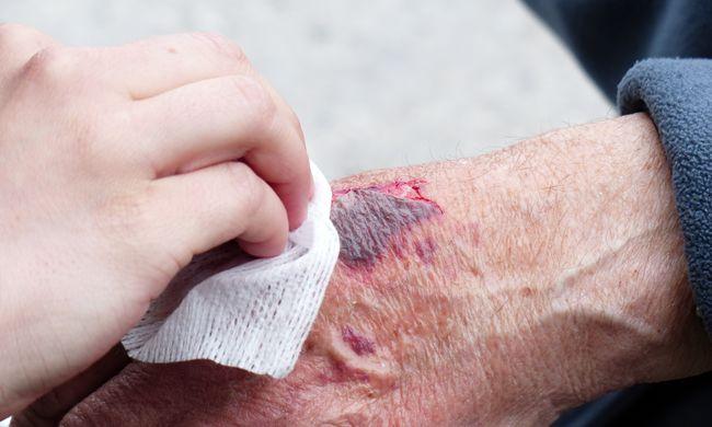 Izgalmas fejlesztés: elkészítették a kötszert, amivel gyorsabban gyógyulnak a sebek