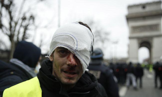 Véres zavargásba torkollott a tüntetés