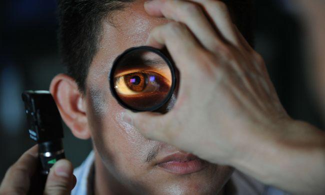 Durva elváltozás történt a férfi szemében, munkabaleset miatt homályosult el a látása - fotó